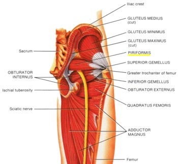 Bradenton Piriformis Syndrome